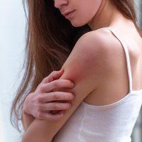 Skin-Image